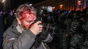 Wounded photographer at Kiev protest